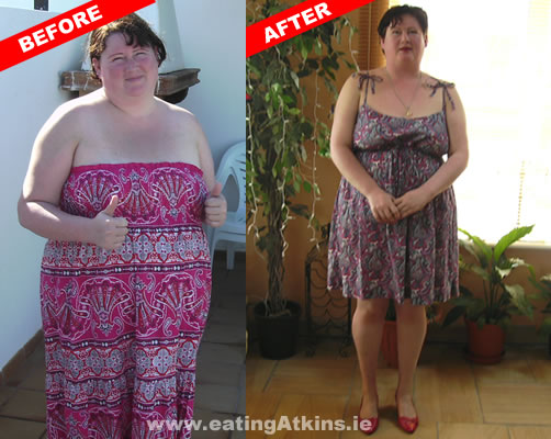 "Success stories - ""How the Atkins Nutritional way changed ..."